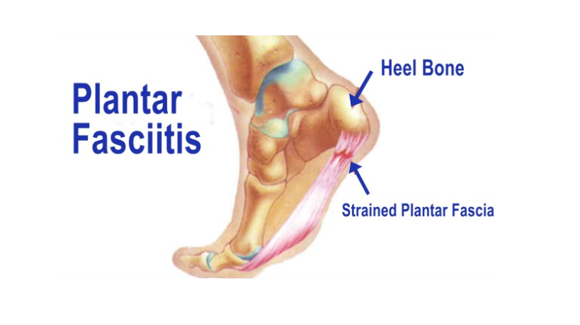 PLANTAR FASCIITIS and what's wrong with financial services.